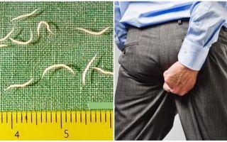 Symtom och behandling av pinworms hos vuxna