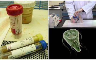 Hur man korrekt skickar avföring på Giardia, analysmetoder