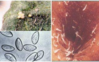 Vad ser pinworm ägg ut?