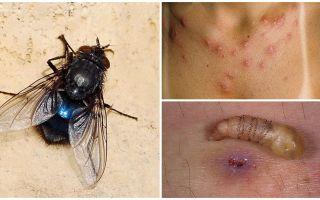 En fluga som lägger larver under mänsklig hud