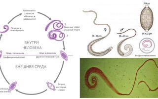 Symtom och behandling av mänskliga klor