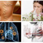 Allergi, hjärtsjukdom, tuberkulos