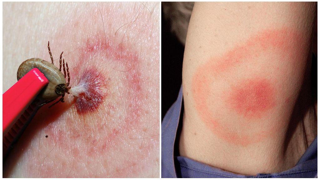 Lyme Disease eller Tick-borne Borreliosis