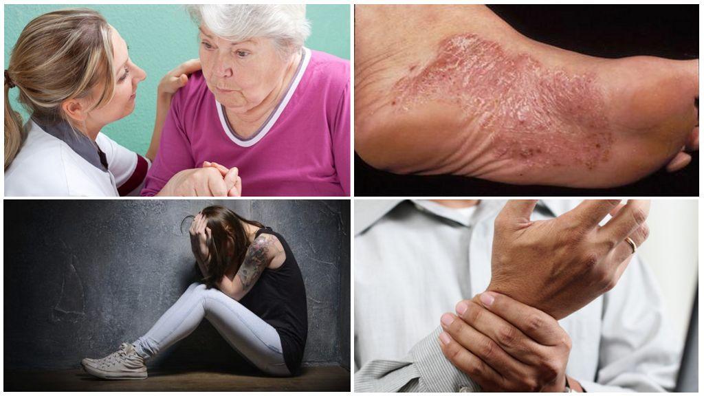 Symtom på kronisk stadium av borreliosis