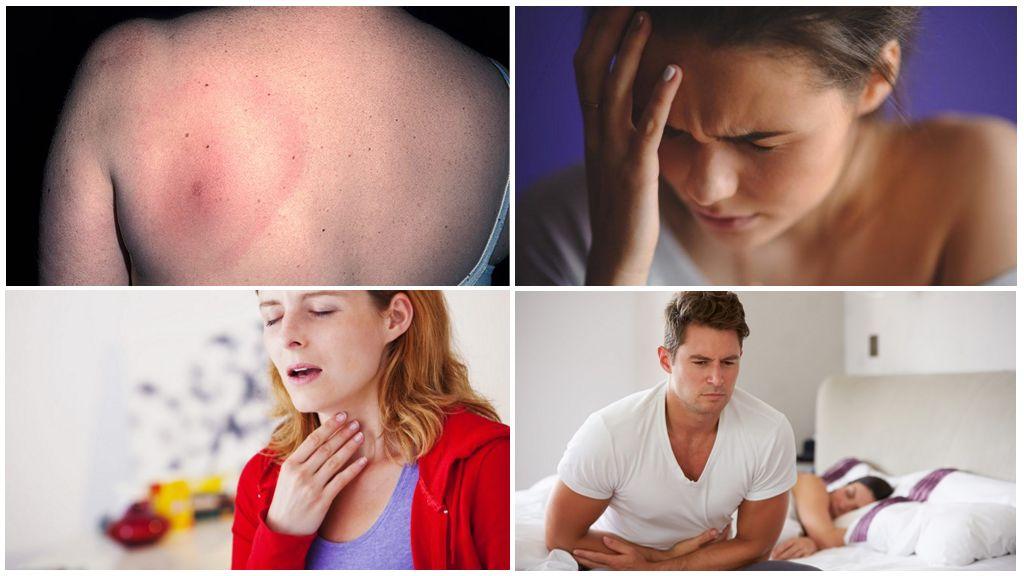 Symptom på borreliosis
